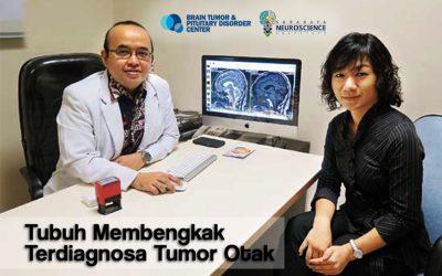 Perjuangan Veny sembuh dari Tumor Otak